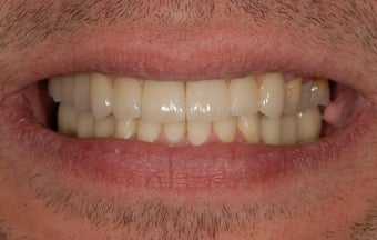 Repalcement of hopeless teeth with implant supported bridges after 1041589