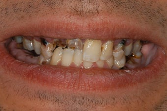 Repalcement of hopeless teeth with implant supported bridges before 1041589