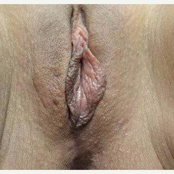 35-44 year old woman treated with Vaginoplasty after 2310846