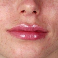 25-34 year old woman treated with Rosacea Treatment before 2346014