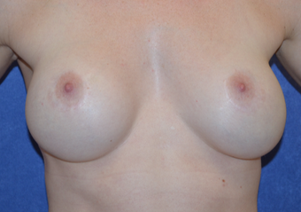 25-34 year old woman treated with Breast Implant Revision before 3692166