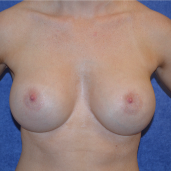 25-34 year old woman treated with Breast Implant Revision after 3692166