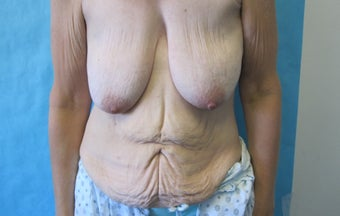 50 Year Old Female Tummy tuck and breast lift after massive weight loss before 1182023