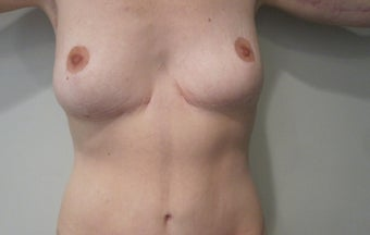 50 Year Old Female Tummy tuck and breast lift after massive weight loss after 1182023