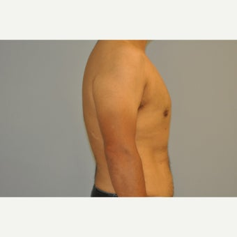 43 yo man treated with a male breast reduction 1537599
