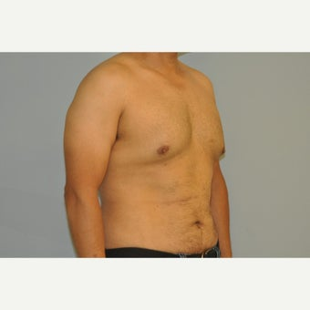 43 yo man treated with a male breast reduction before 1537599