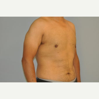 43 yo man treated with a male breast reduction after 1537599