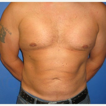 45 old man- Abdominal Etching with liposuction and liposculpture after 1538970