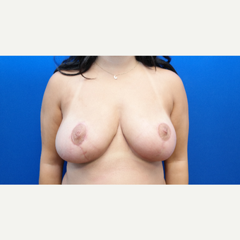 25-34 year old woman treated with Breast Reduction after 3099161