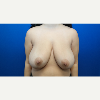 25-34 year old woman treated with Breast Reduction before 3099161