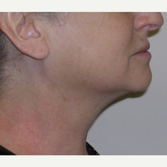 55-64 year old woman treated with Kybella after 2674842