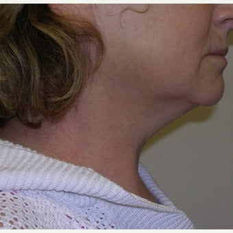55-64 year old woman treated with Kybella before 2674842