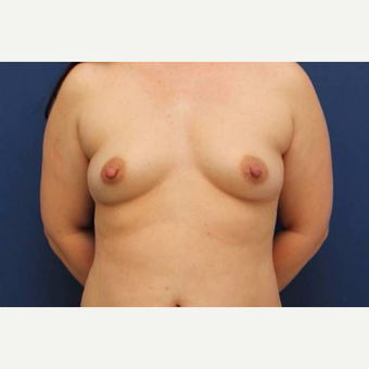 41 year old female, 350cc moderate-plus profile, silicone gel breast implants, submuscular before 3814681