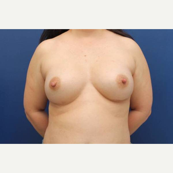 41 year old female, 350cc moderate-plus profile, silicone gel breast implants, submuscular after 3814681