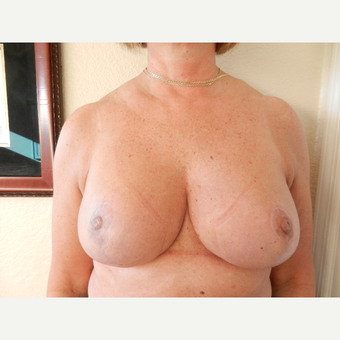 45-54 year old woman treated with Breast Reduction after 3412572