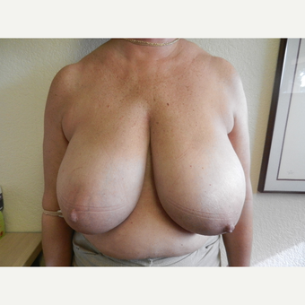 45-54 year old woman treated with Breast Reduction before 3412572