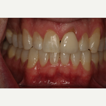25-34 year old man treated with Clear Braces after 3129053