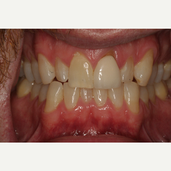 25-34 year old man treated with Clear Braces before 3129053