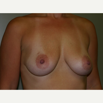 35-44 year old woman treated with Breast Implants before 3153841