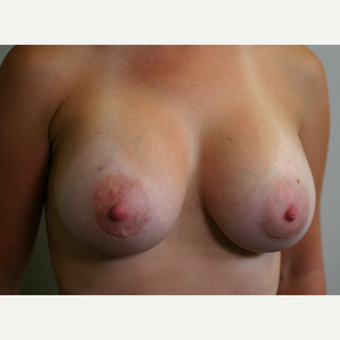 35-44 year old woman treated with Breast Implants after 3153841