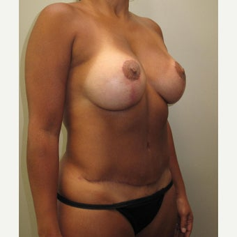 35-44 year old woman treated with Mommy Makeover after 1575649