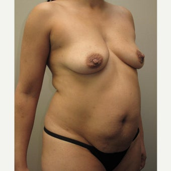 35-44 year old woman treated with Mommy Makeover before 1575649