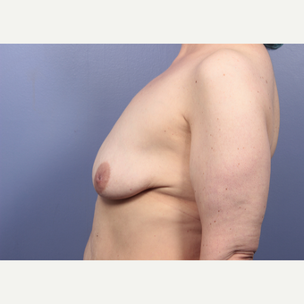 45-54 year old woman treated with Breast Lift with Implants before 3666160