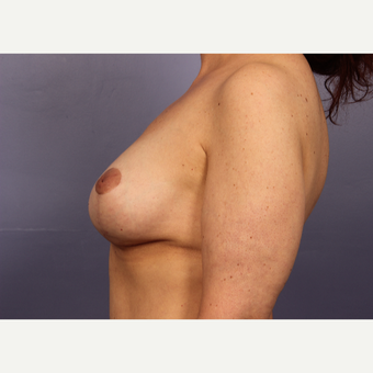 45-54 year old woman treated with Breast Lift with Implants after 3666160