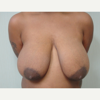 25-34 year old woman treated with Breast Reduction before 3823240