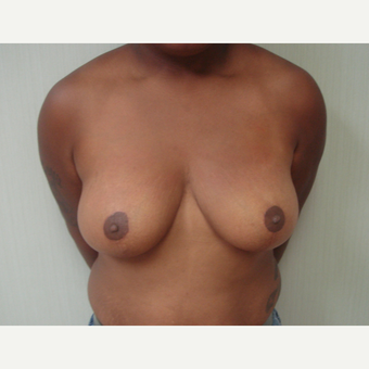 25-34 year old woman treated with Breast Reduction after 3823240