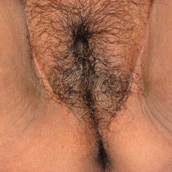 46 year old woman treated with Vaginal Rejuvenation/Vaginoplasty after 1982860