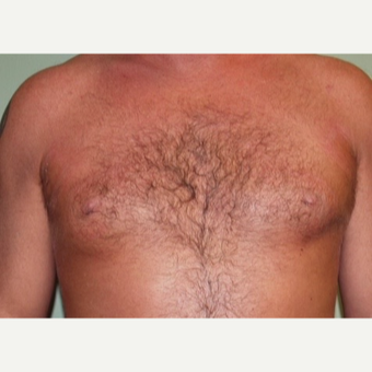 35-44 year old man treated with Male Breast Reduction after 2977717