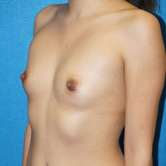 23 year old woman treated with Breast Augmentation 2488303
