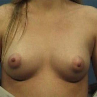 23 year old woman treated with Breast Augmentation 1719124