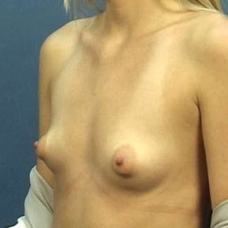 23 year old woman treated with Breast Augmentation before 1719124