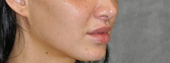 25-34 year old woman treated with Lip Lift after 3175794