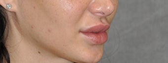 25-34 year old woman treated with Lip Lift before 3175794