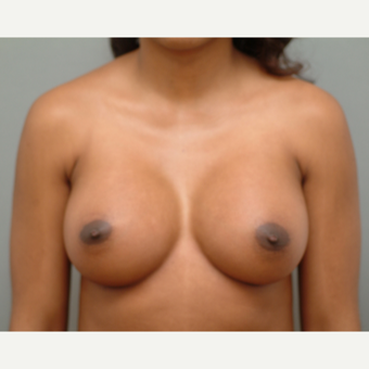 25-34 year old woman treated with Breast Implants after 3742016