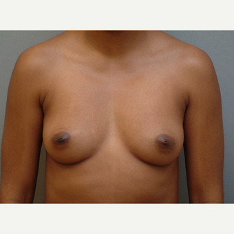 25-34 year old woman treated with Breast Implants before 3742016