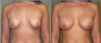breast augmentation before 1060263