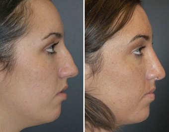 Rhinoplasty before 1149423