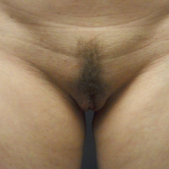 25-34 year old woman treated with Labiaplasty after 3169300