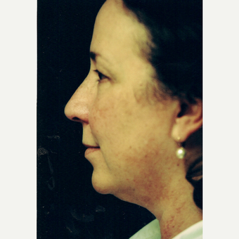 45-54 year old woman treated with Facelift before 3271769