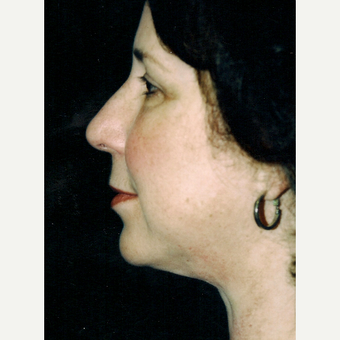 45-54 year old woman treated with Facelift after 3271769