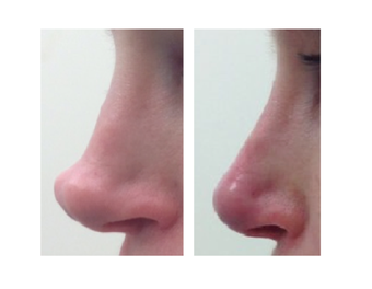 Non-surgical nose job using Restylane before 1360144