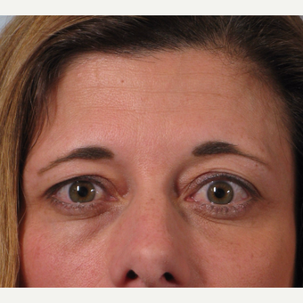 35-44 year old woman treated with Brow Lift before 3261200