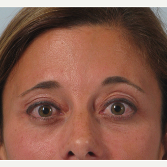 35-44 year old woman treated with Brow Lift after 3261200