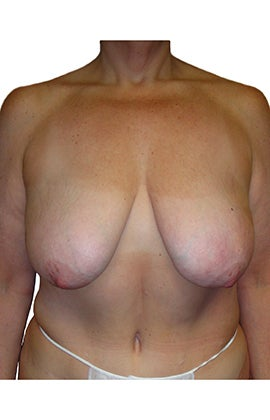 Mastopexy (breast lift) before 320241