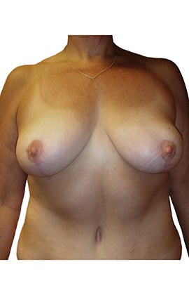 Mastopexy (breast lift) after 320241
