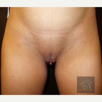 35-44 year old woman treated with Labiaplasty before 3507212